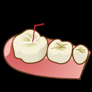 「シーラント」で虫歯になりうる溝を埋める