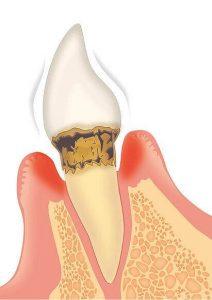 「中等度歯周炎」とは