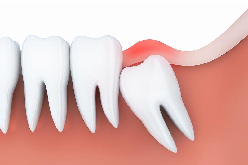 「智歯周囲炎」とは