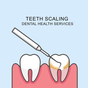 予防歯科で行う内容とは