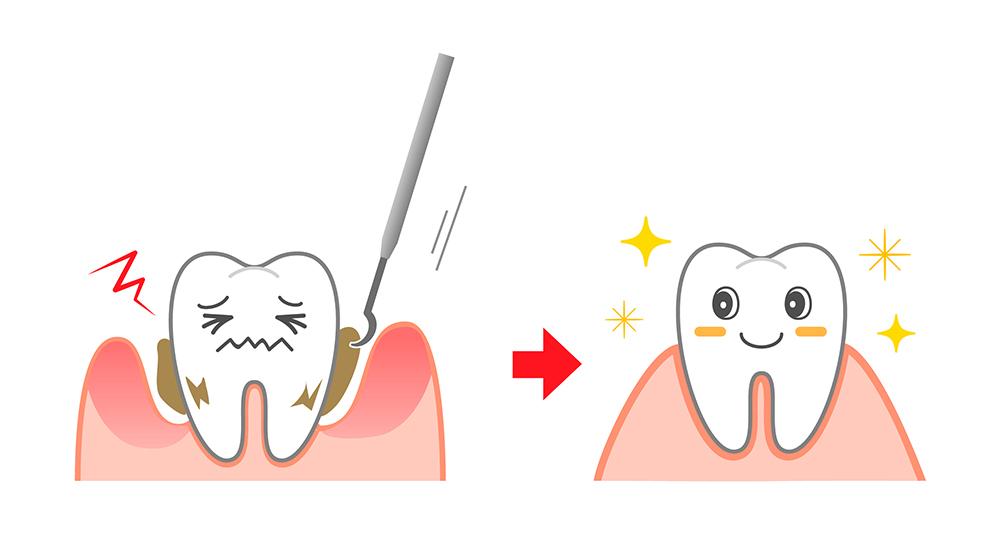 予防歯科のメリット・デメリット