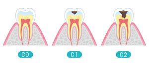 虫歯の進行と治療方法